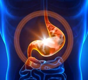 Acid reflux - GERD defense in Virginia DUI alcohol cases